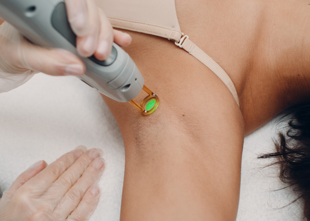 What Women Should Know Before Getting Laser Hair Removal